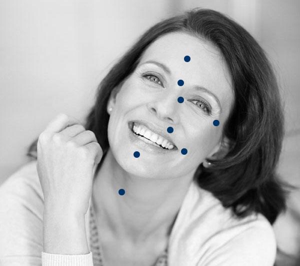 Botox Behandlungszonen im Gesicht